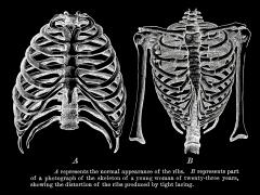 stockvault-human-ribcages-circa-1911148436