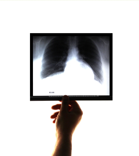 Doctor examining and holding an x-ray image on his hand