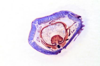 Cross section of an earthworm.